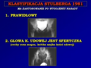 Stulberg_1TA