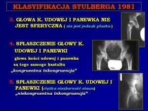 Stulberg_2TA