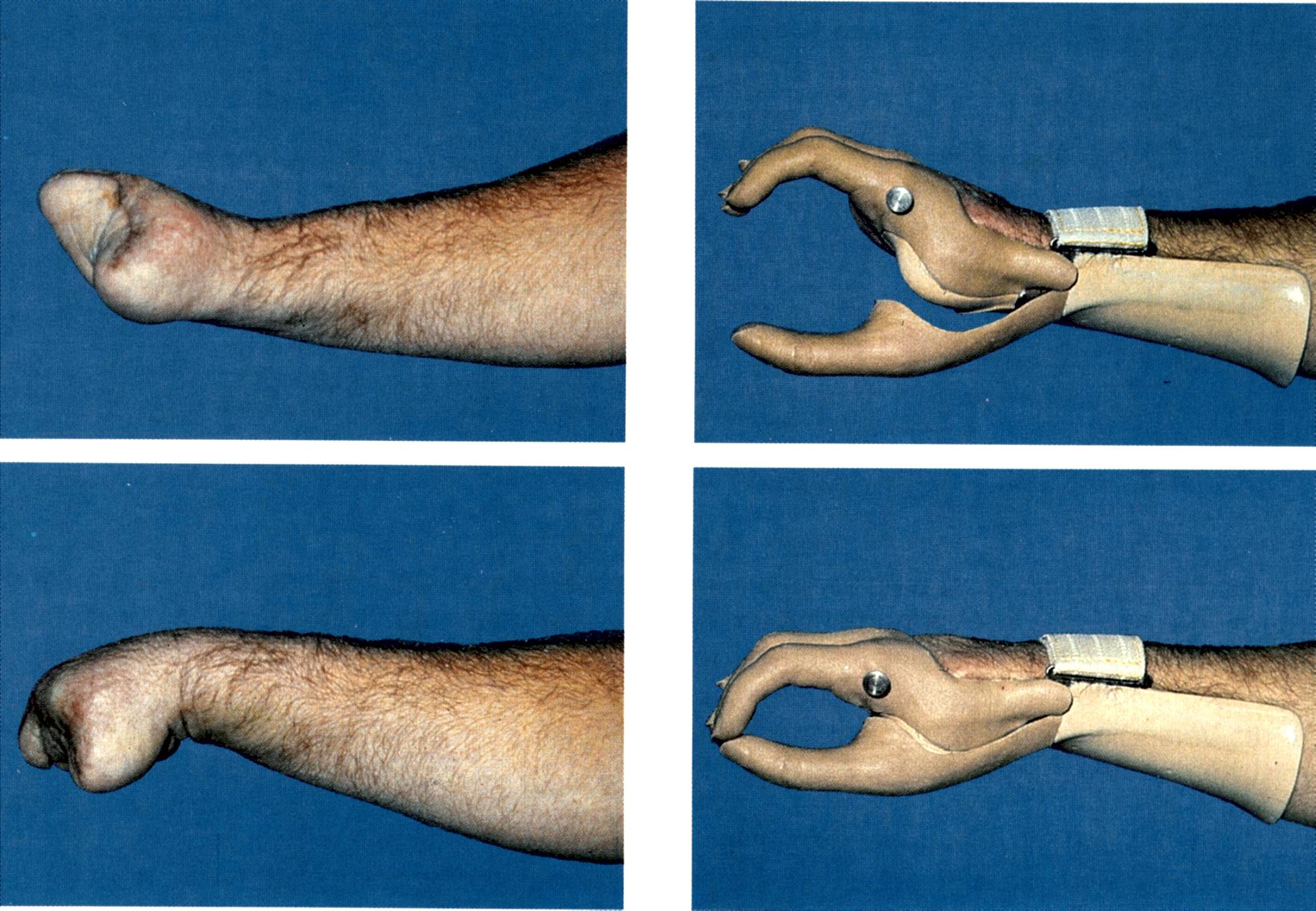 Ogromny _12. Rodzaje protez kończyn górnych - Ortopedia i Traumatologia AP56
